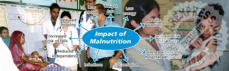 Malnutrition: A Global Problem & Ways to Get Rid of It